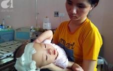 Người mẹ nghèo đau đớn nhìn con gái 14 tháng tuổi bị bệnh não úng thủy quái ác hành hạ